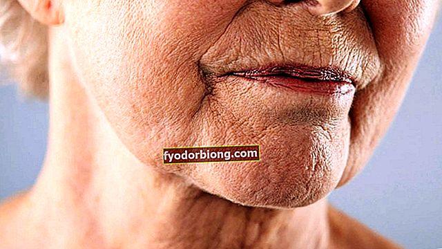 Kinesisk overskæg - Hvad det er, hvorfor det ser ud, hvordan man behandler det