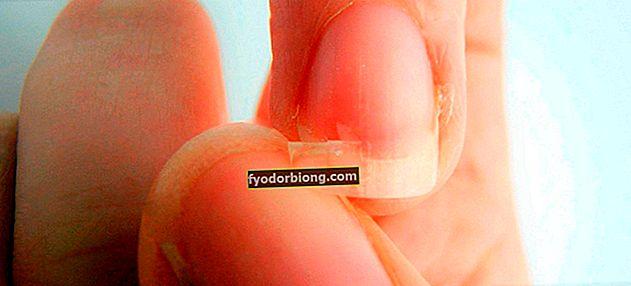Αδύναμα νύχια - Κύριες αιτίες και συμβουλές για τον τρόπο ενίσχυσης των νυχιών