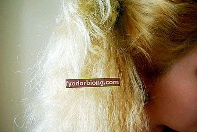 Hvad er elastisk eller gummieret hår, og hvordan man behandler det
