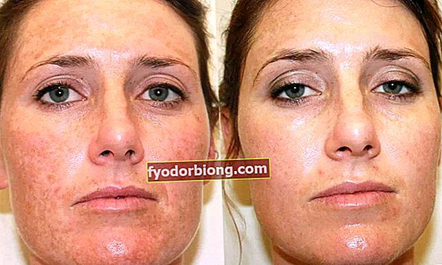 Lys din hud - professionelle og hjemmelavede teknikker og tricks til at beholde dem