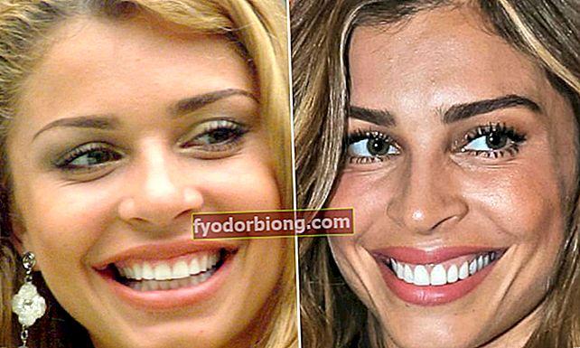 10 før og efter de berømte smil