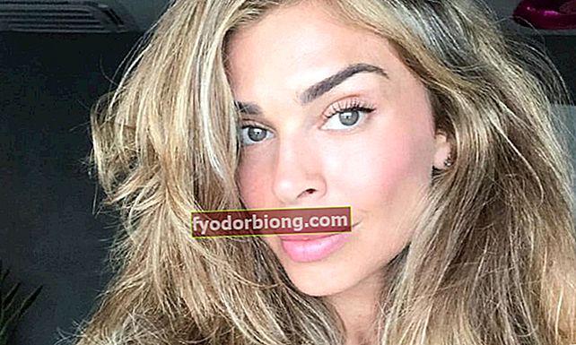 10 berømtheder, der anvender botox, og det har du aldrig forestillet dig