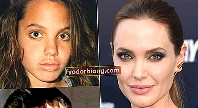 Prieš ir po kai kurių garsių žmonių, kurie turėjo nosies darbą, rinoplastiką