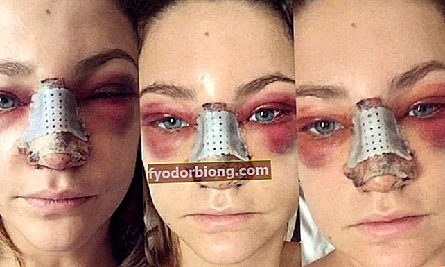 Chokerende fotos viser, hvordan næseoperationer ser ud