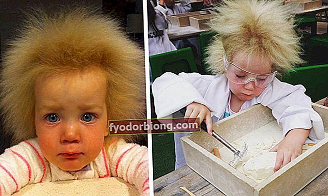 Aussie-pige lider af usundt hårsyndrom, og fotos overrasker