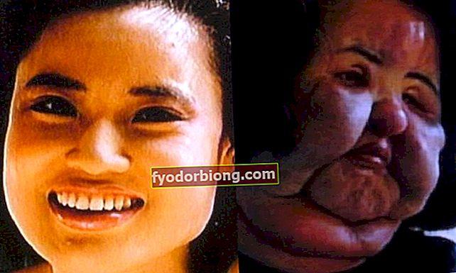 Hun injicerede madolie i ansigtet, og resultatet var uhyrligt