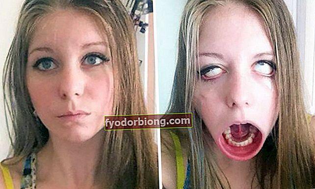 53 før og efter piger, der laver ansigter, som ingen siger, er de samme mennesker