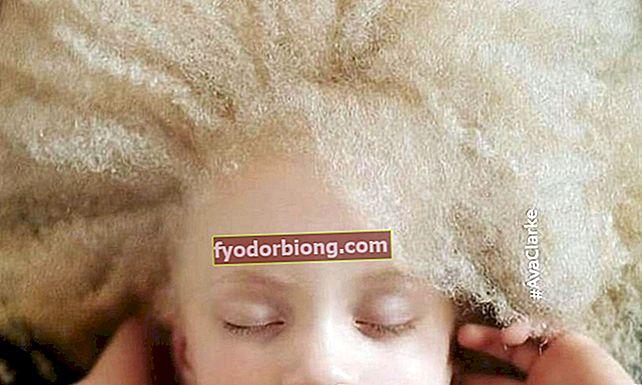 8 sjældneste hårfarver i verden