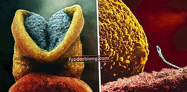 Rasedusfotod paljastavad, milline on rasedus ema üsas