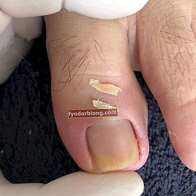 Indgroet negle - Hvad er det, hvorfor klemmer det, hvordan man renser og forhindrer det
