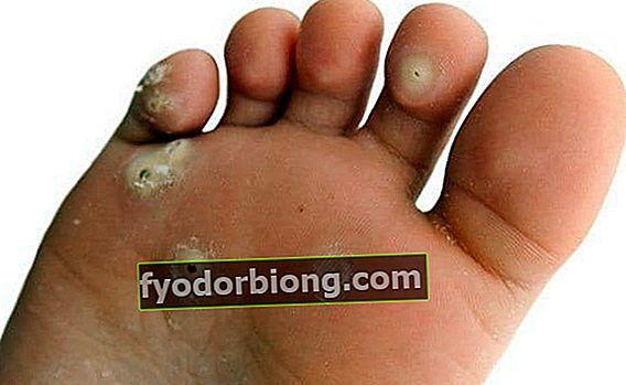 Hær på fødderne - Definition, typer, forebyggelse og behandlinger