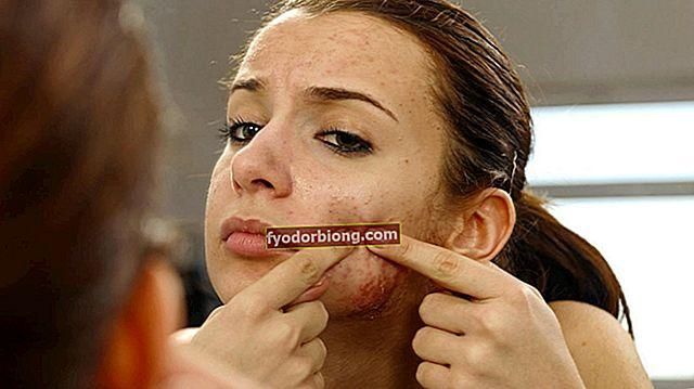 P-piller til acne - Hvordan løsningen virkelig fungerer